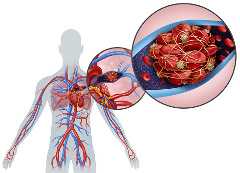 When Should You Worry About Blood Clots and What Are the Best Treatments